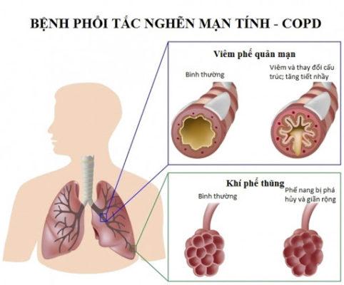Những điều cân biết về bệnh phổi tắc nghẽn mãn tính