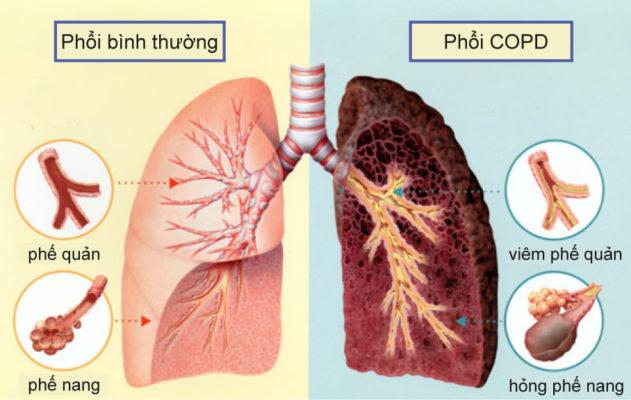 Hút thuốc lá-Nguyên nhân chứng bệnh COPD