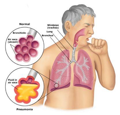 Chứng bệnh phổi tắc nghẽn mãn tính